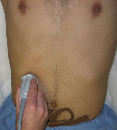 Gallbladder- subcostal approach