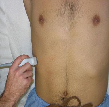 Gallbladder- intercostal approach
