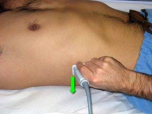 Right renal ultrasound probe position