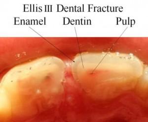 ellis fracture III
