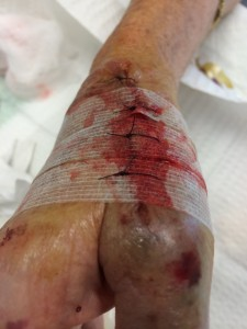 steristrip suture