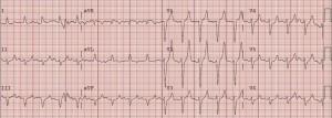 hyperkalemia-8-5-very-tented