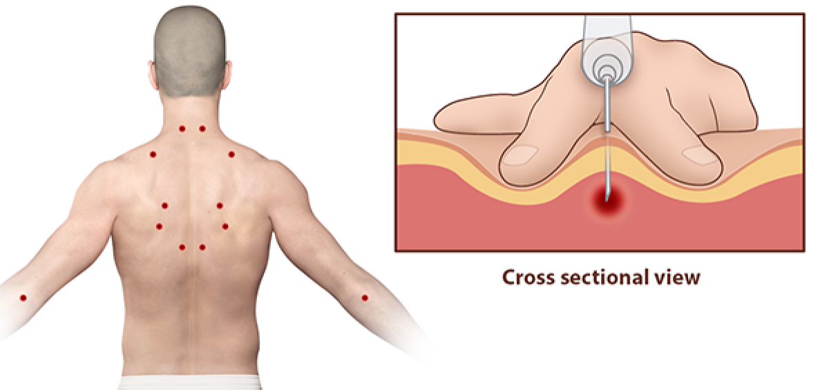 Trigger Point Injections Sinaiem