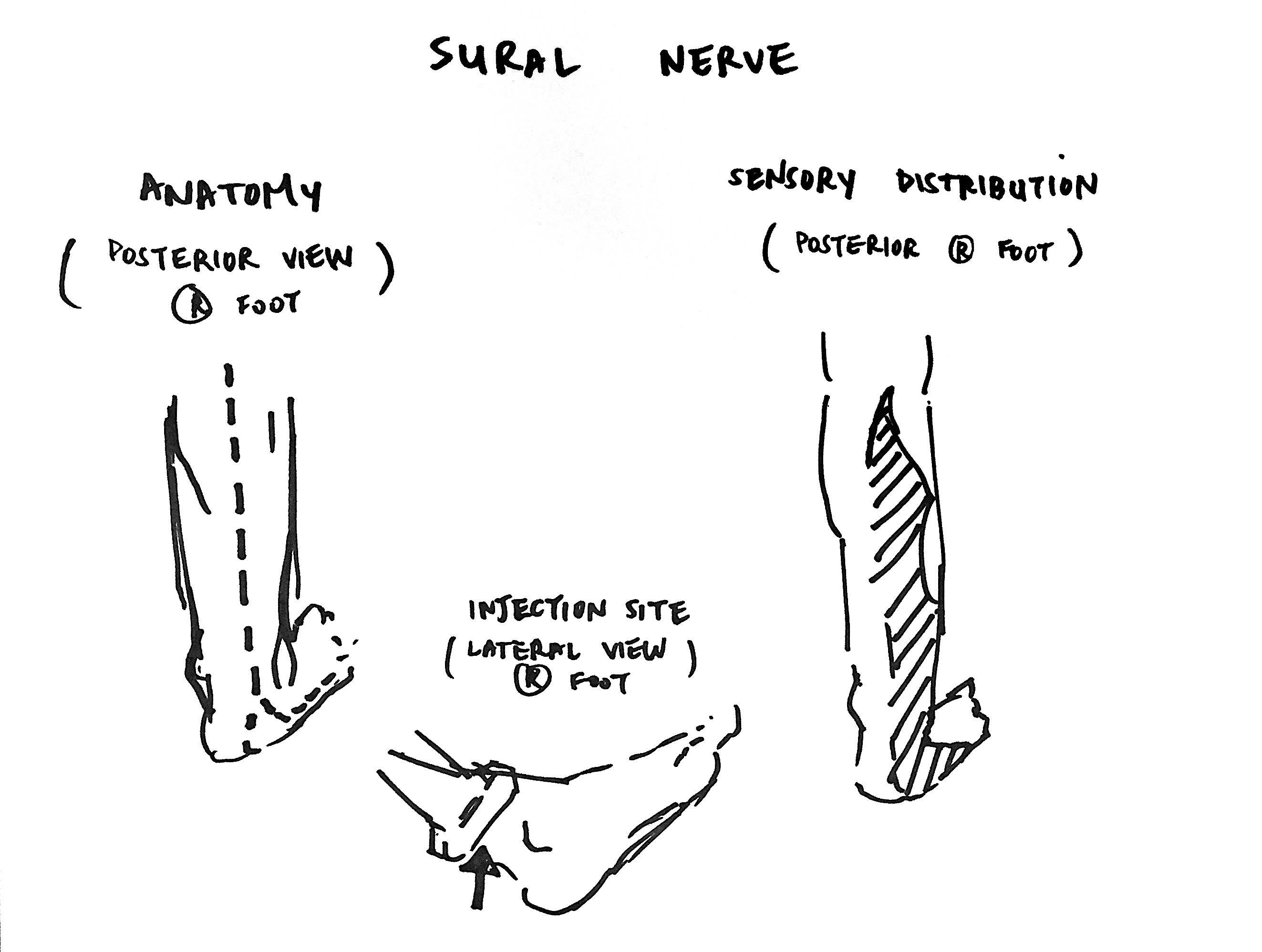 Lower Extremity Nerve Block: The Sural Nerve | SinaiEM