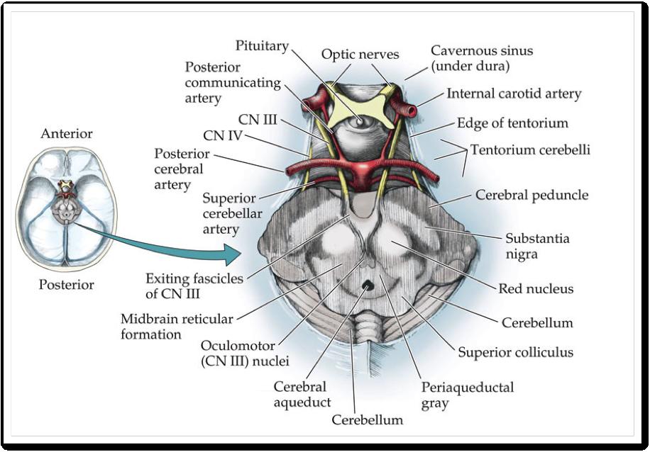 Oculomotor palsy | SinaiEM  Oculomotor pals...