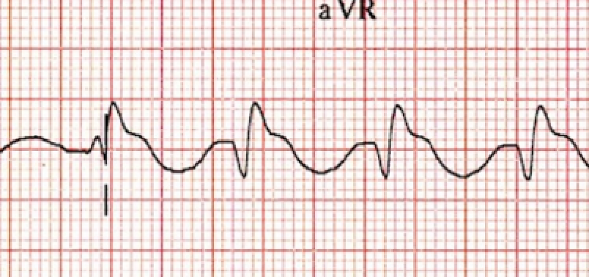why is there a terminal r in avr with tca poisoning sinaiem