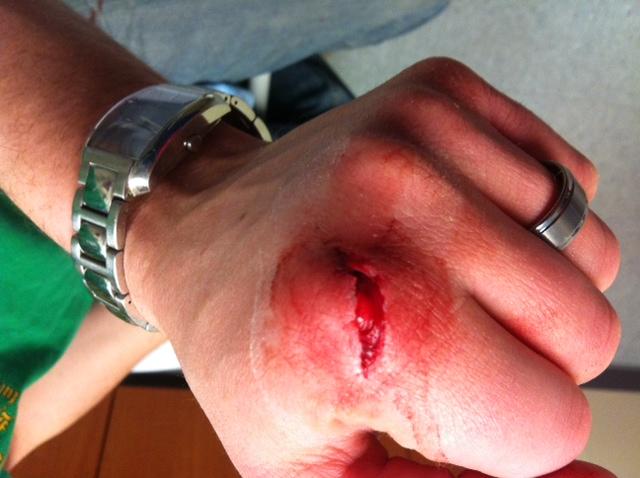 Finger Swollen After Dog Bite