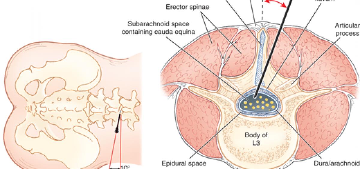 Lateral Lumbar Puncture Sinaiem